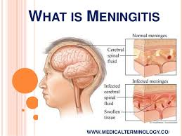 Meningitis: We were caught off guard, says FG